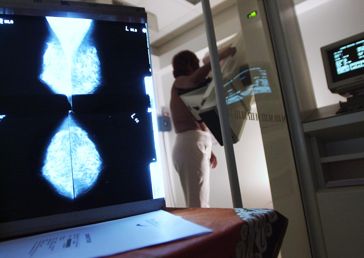 US study revives argument over mammogram screening