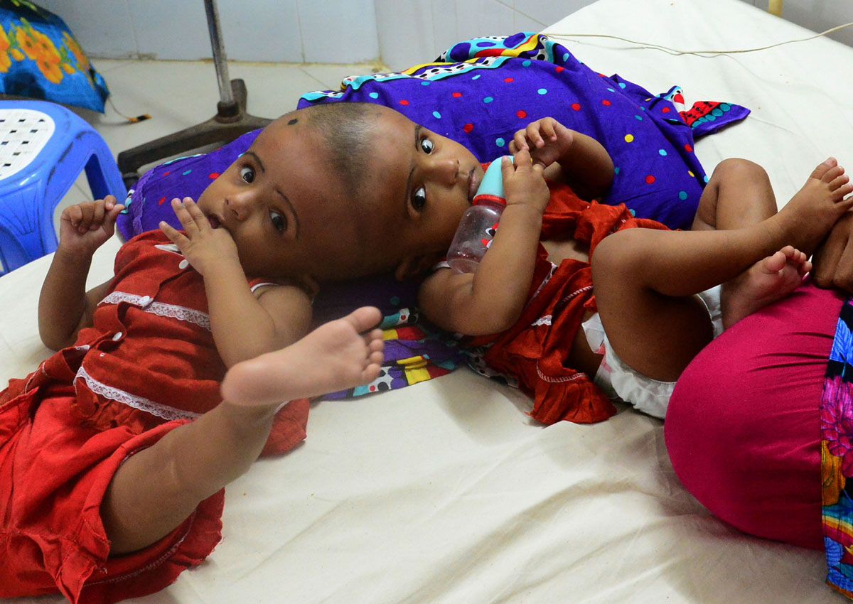 Bangladesh performs 'first' conjoined twin surgery