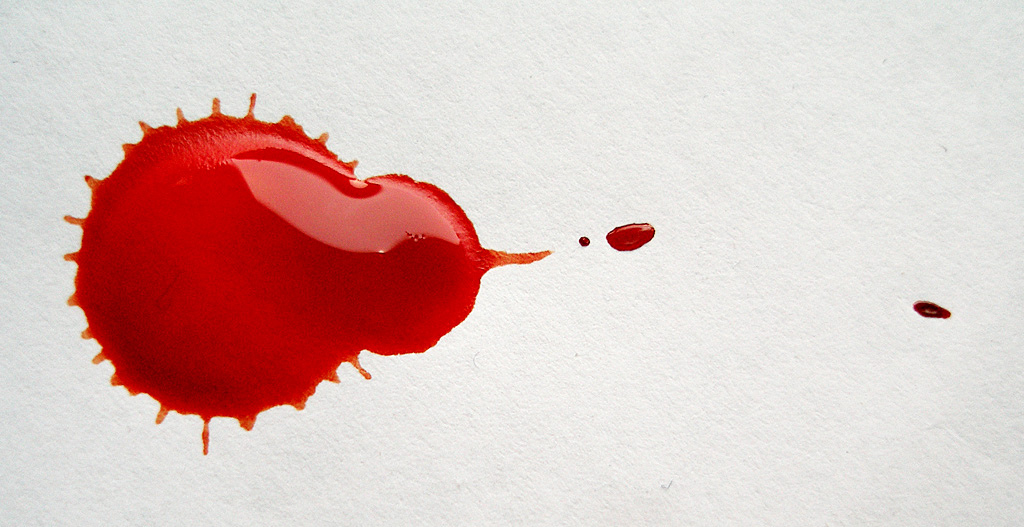 GE Ventures unveils new blood collection startup Drawbridge Health