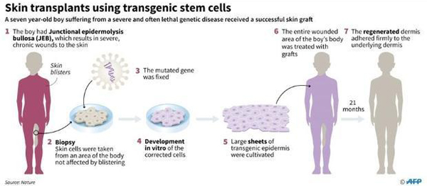 Gene therapy saves boy's skin and life