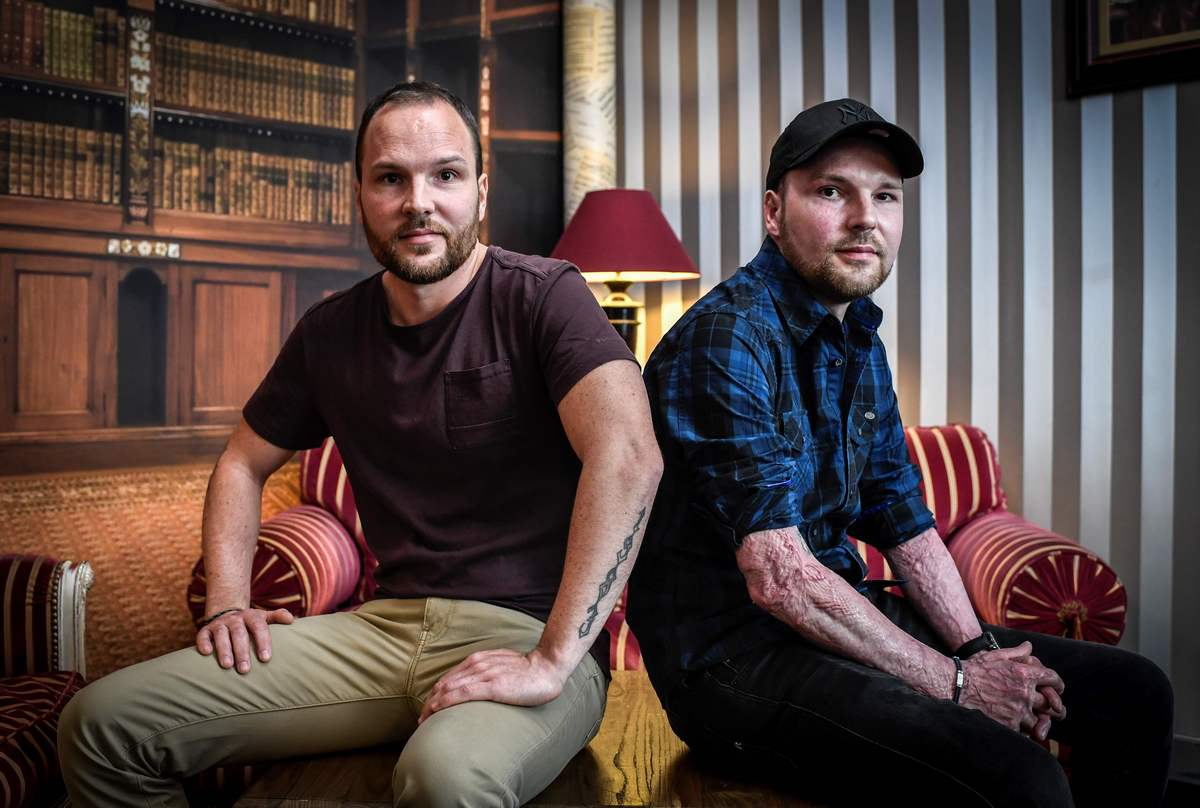 More than skin deep: brotherly bond saved French burn victim