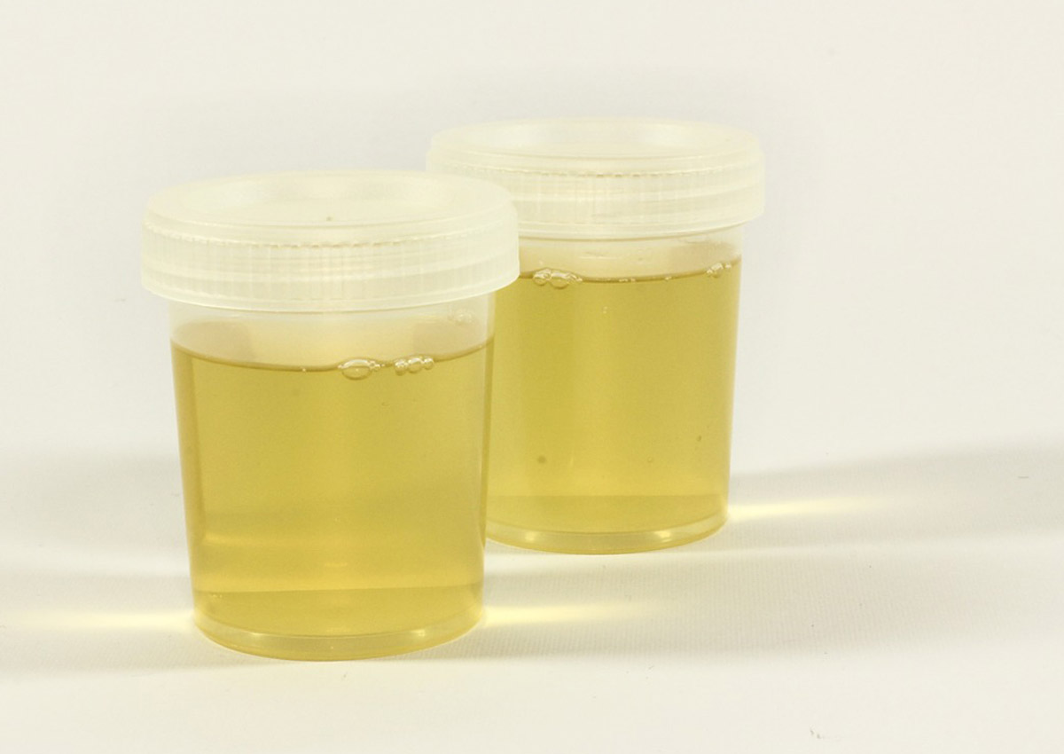 Japan to trial 'world's first urine test' to spot cancer