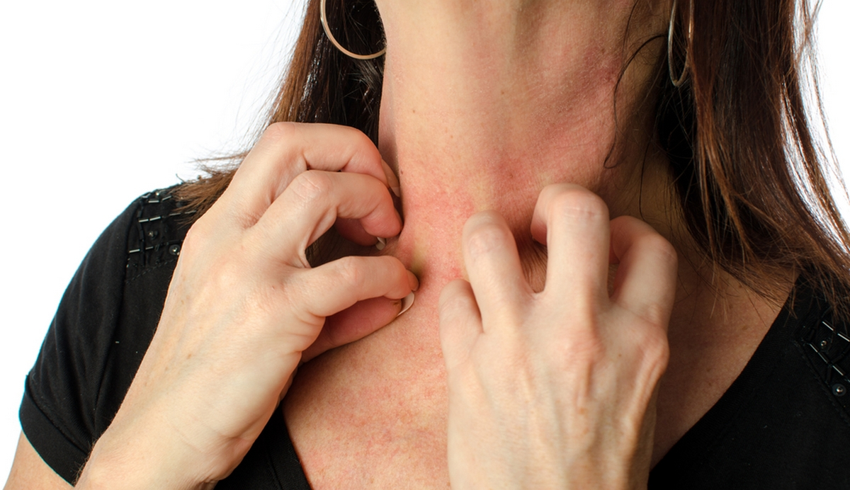 Costly eczema injection also helps relieve severe asthma: Study