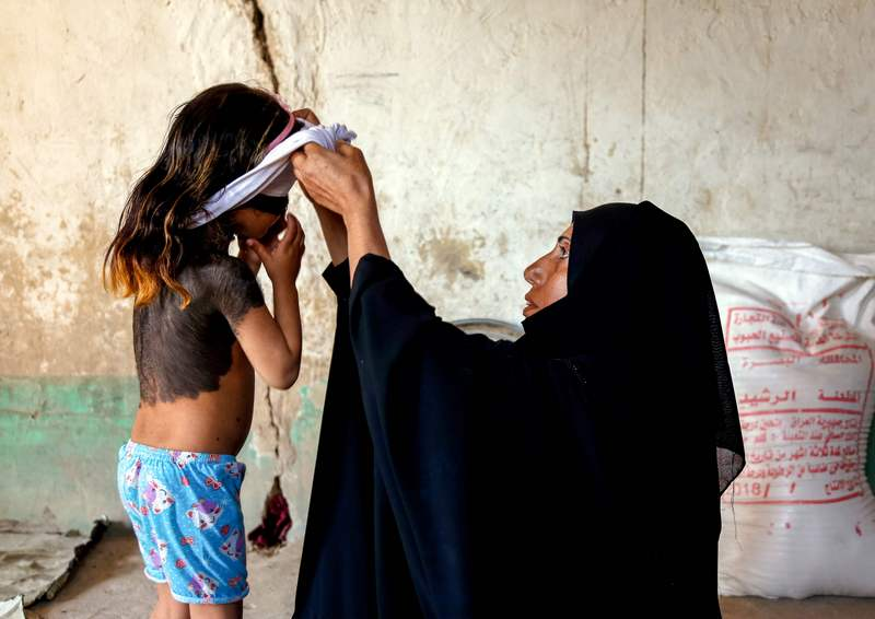 In an Iraqi village, a little girl hides skin disease from neighbours