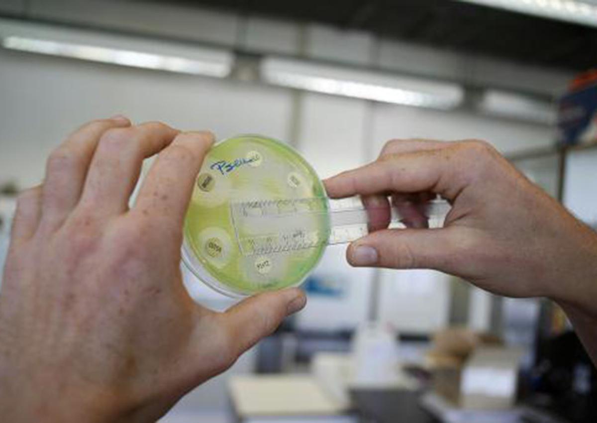 Drug-resistant superbug spreading in hospitals: study
